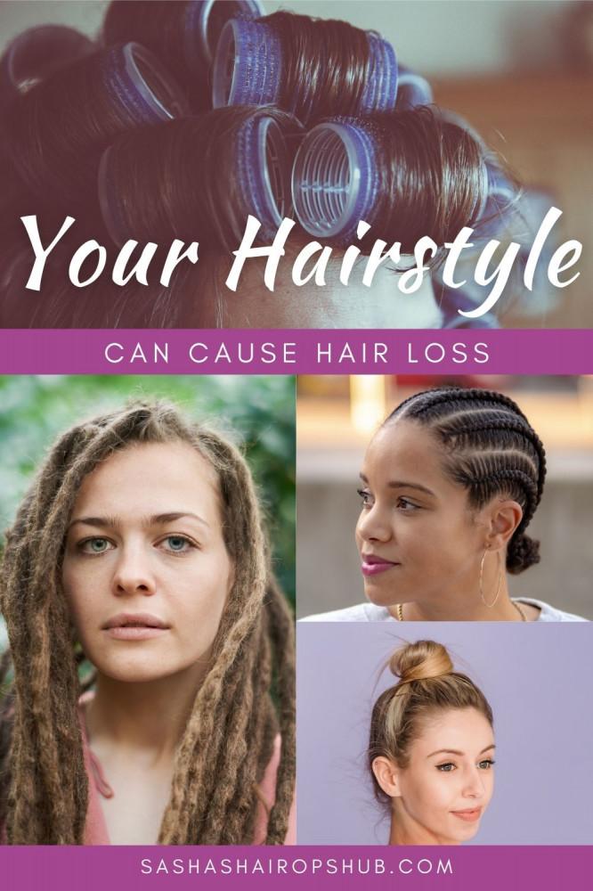 Tight hairstyles Cause Hair Loss