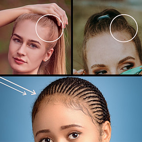 Traction Alopecia Affects The Hairline